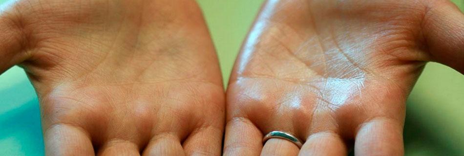 Почему потеют руки ладони и ноги