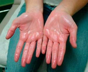 Фото: почему у взрослого могут постоянно сильно потеть ладошки рук и стопы ног ?